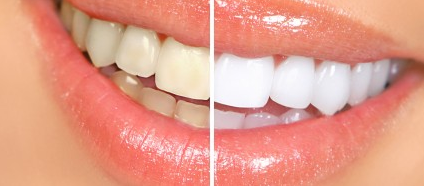 Models Direct review tooth-whitening alternatives